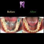 1d024f16 9219 4eba 82d4 7fca87eb889c 150x150 - درمان ارتودنسي بی نظمی دندان های فک پایین