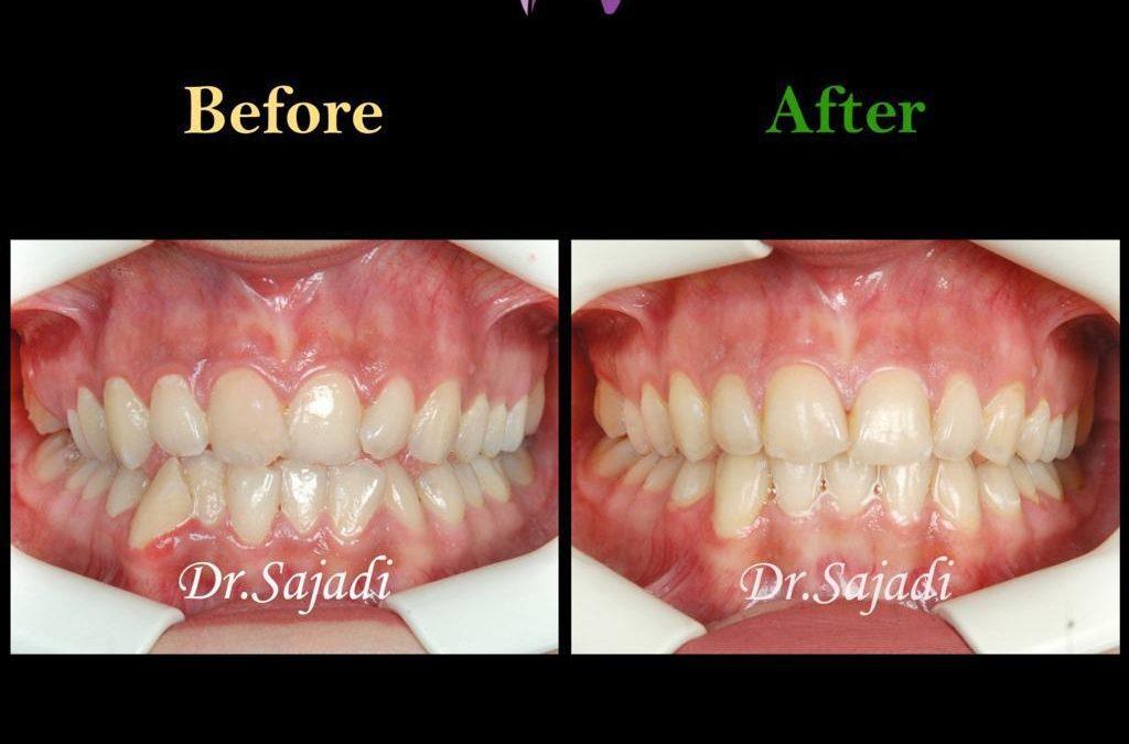 60435bc7 9306 4509 8a46 48d686300661 1024x675 - درمان ارتودنسي بی نظمی دندان های فک پایین