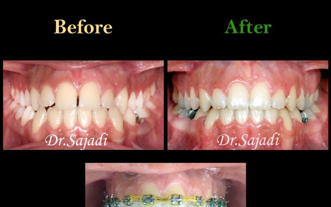 630110de e249 4d4b b50e e6a9e6af346b 1080x675 - درمان ارتودنسي نارضایتی از موقعیت دندان ها و فک پایین