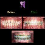 630110de e249 4d4b b50e e6a9e6af346b 150x150 - درمان ارتودنسي نارضایتی از موقعیت دندان ها و فک پایین