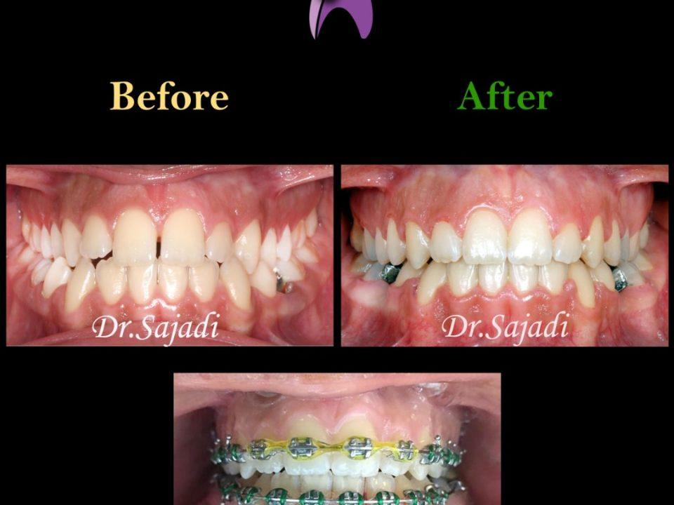 630110de e249 4d4b b50e e6a9e6af346b 960x720 - درمان ارتودنسي نارضایتی از موقعیت دندان ها و فک پایین