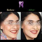 96f457e0 fa48 411b 9745 488c62c5281a 150x150 - درمان ارتودنسي بی نظمی دندان های فک پایین