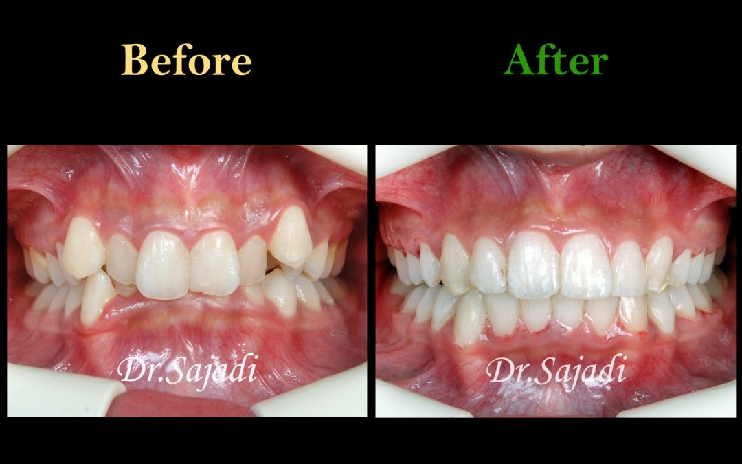 c0f10e00 3d0d 4caa 9b13 7e309d8250a2 1080x675 - درمان ارتودنسي بی نظمی شدید بدون کشیدن دندان