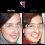 cf766cc8 2e6e 44ac aca3 641a91d91a96 150x150 - درمان ارتودنسي بی نظمی شدید بدون کشیدن دندان