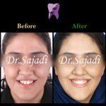 d58ce9f4 ae73 40b8 a108 44d131c14ffb 150x150 - درمان ارتودنسي نارضایتی از موقعیت دندان ها و فک پایین