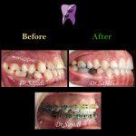 fd5f4d2d 9e6c 473c b583 b0a2fa9d40b4 150x150 - درمان ارتودنسي نارضایتی از موقعیت دندان ها و فک پایین