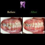 photo 2020 03 28 13 32 33 150x150 - درمان ارتودنسي نارضایتی از نازیبایی لبخند