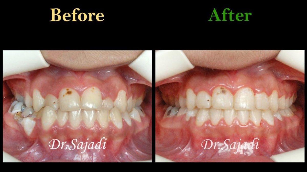 photo 2020 03 28 13 32 34 1200x675 - درمان ارتودنسي نارضایتی از نازیبایی لبخند