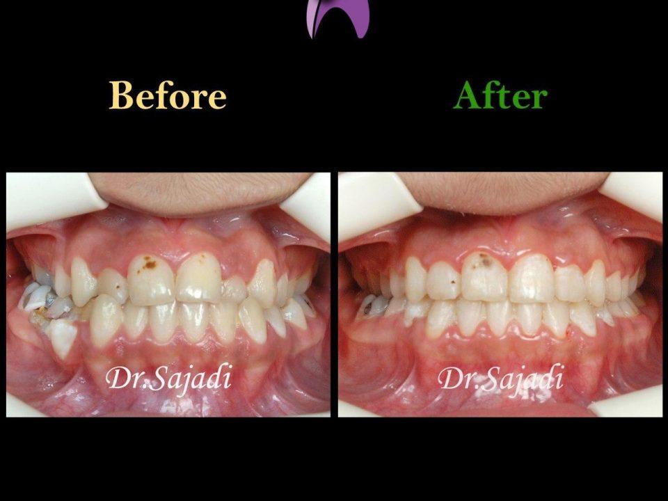 photo 2020 03 28 13 32 34 960x720 - درمان ارتودنسي نارضایتی از نازیبایی لبخند