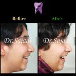 photo 2020 03 28 13 32 41 150x150 - درمان ارتودنسي نارضایتی از نازیبایی لبخند