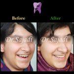 photo 2020 03 28 13 32 43 150x150 - درمان ارتودنسي نارضایتی از نازیبایی لبخند