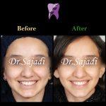 1 1 150x150 - درمان ارتودنسي نارضایتی از بی نظمی دندان