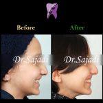 3 1 150x150 - درمان ارتودنسي نارضایتی از بی نظمی دندان