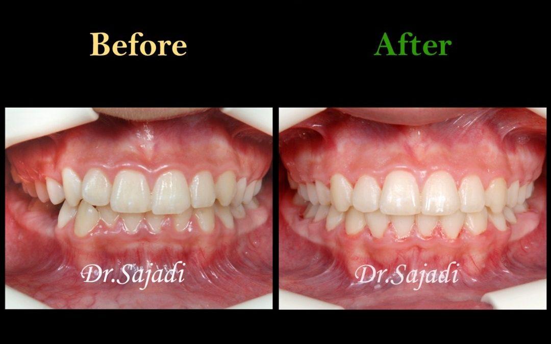 5 1080x675 - درمان ارتودنسي نارضایتی از بی نظمی دندان