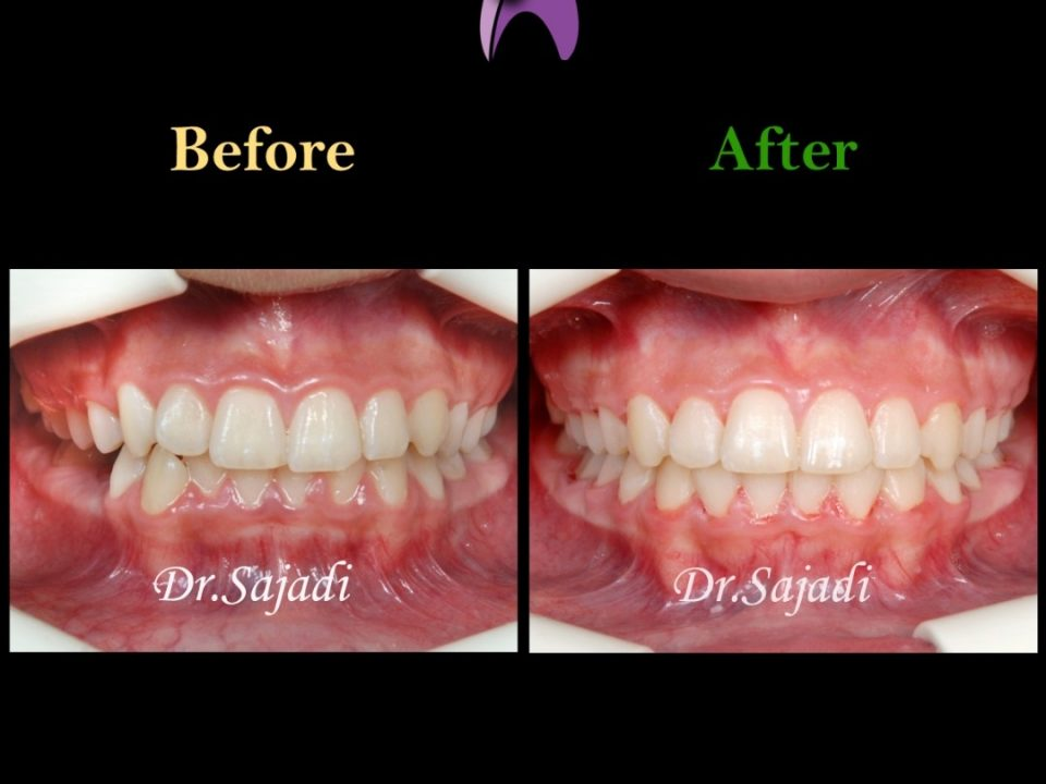 5 960x720 - درمان ارتودنسي نارضایتی از بی نظمی دندان