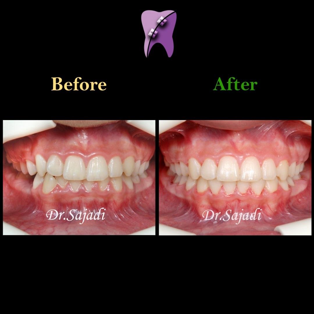5 - درمان ارتودنسي نارضایتی از بی نظمی دندان