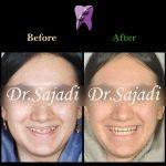 photo 2020 04 04 14 50 05 150x150 - درمان ارتودنسي فاصله بین دندان های جلو