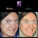 photo 2020 04 04 14 50 20 150x150 - درمان ارتودنسي فاصله بین دندان های جلو