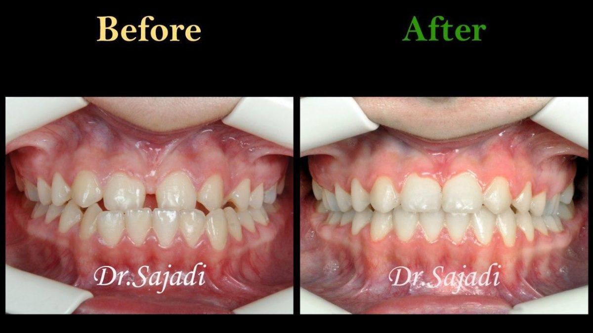 photo 2020 04 04 14 50 24 1200x675 - درمان ارتودنسي فاصله بین دندان های جلو