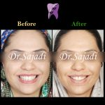 WhatsApp Image 2020 05 30 at 13.03.52 150x150 - درمان ارتودنسی بی نظمی دندان های فک پایین