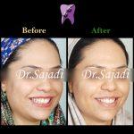 WhatsApp Image 2020 05 30 at 13.03.53 150x150 - درمان ارتودنسی بی نظمی دندان های فک پایین