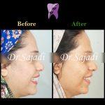 WhatsApp Image 2020 05 30 at 13.03.54 150x150 - درمان ارتودنسی بی نظمی دندان های فک پایین