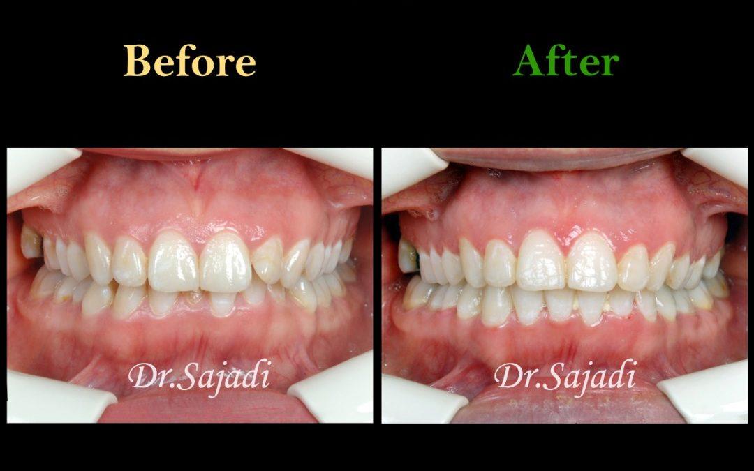 WhatsApp Image 2020 05 30 at 13.03.55 1080x675 - درمان ارتودنسی بی نظمی دندان های فک پایین