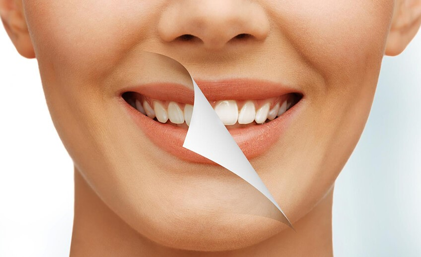 11 2 - شباهت و تفاوت های دندانپزشکی زیبایی و ارتودنسی