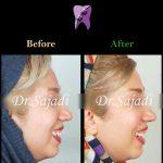 WhatsApp Image 2020 06 21 at 14.46.38 150x150 - درمان کراس بایت دندانی قدامی