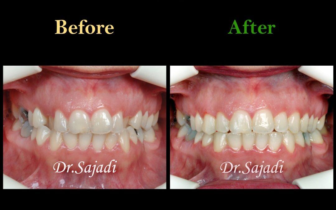 WhatsApp Image 2020 06 21 at 14.46.39 1 1080x675 - درمان کراس بایت دندانی قدامی