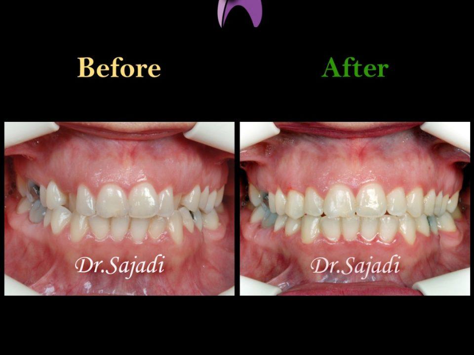 WhatsApp Image 2020 06 21 at 14.46.39 1 960x720 - درمان کراس بایت دندانی قدامی