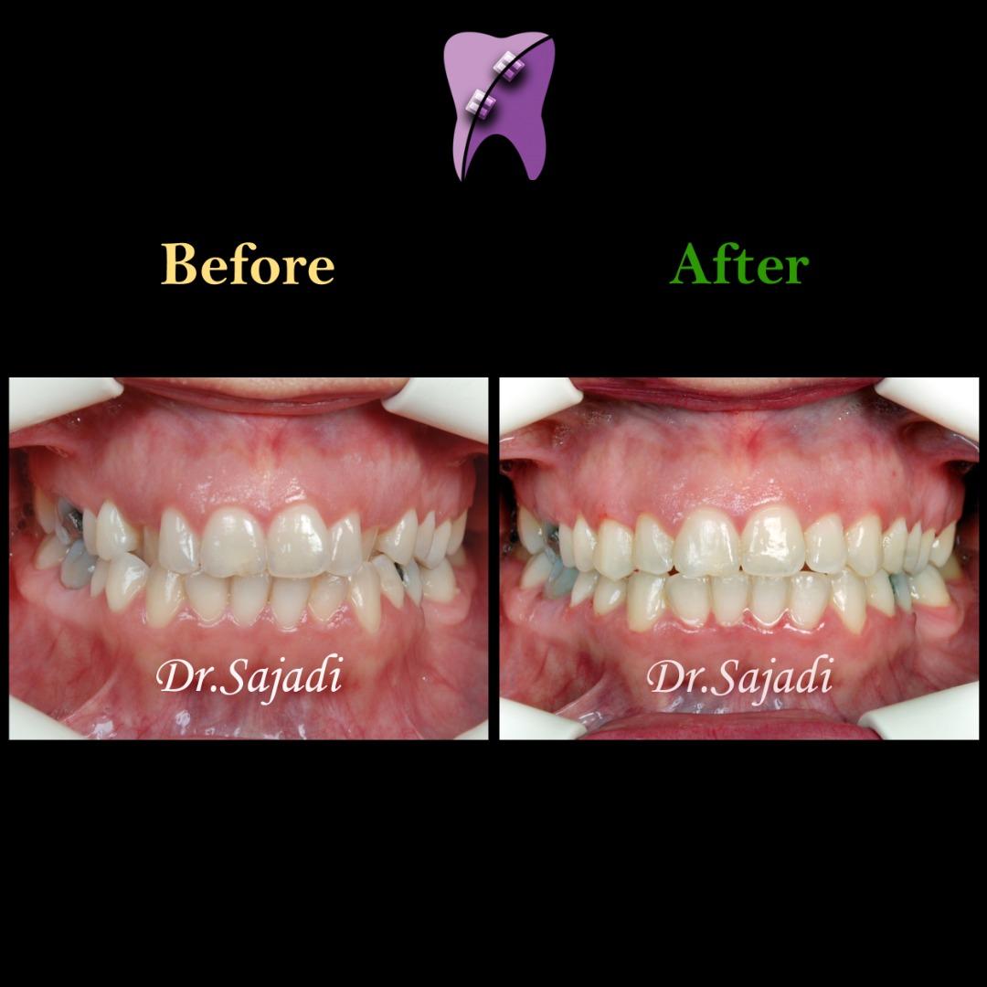 WhatsApp Image 2020 06 21 at 14.46.39 1 - درمان کراس بایت دندانی قدامی