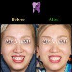 WhatsApp Image 2020 06 21 at 14.46.39 150x150 - درمان کراس بایت دندانی قدامی