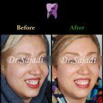 WhatsApp Image 2020 06 21 at 14.46.41 150x150 - درمان کراس بایت دندانی قدامی