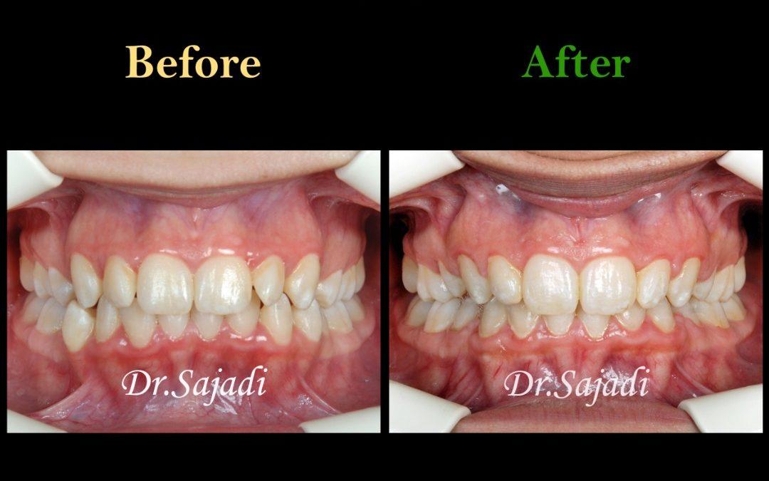 WhatsApp Image 2020 06 28 at 13.13.58 1 1080x675 - ارتودنسی ثابت با کشیدن دندان جهت اصلاح درمان متحرک قبلی بیمار