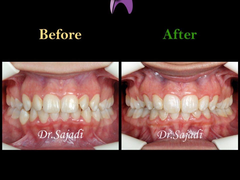 WhatsApp Image 2020 06 28 at 13.13.58 1 960x720 - ارتودنسی ثابت با کشیدن دندان جهت اصلاح درمان متحرک قبلی بیمار