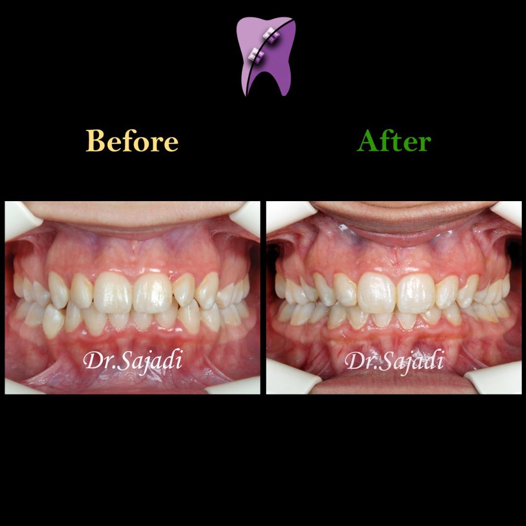 WhatsApp Image 2020 06 28 at 13.13.58 1 - ارتودنسی ثابت با کشیدن دندان جهت اصلاح درمان متحرک قبلی بیمار