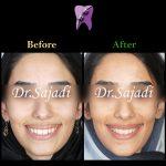WhatsApp Image 2020 06 28 at 13.13.59 2 150x150 - ارتودنسی ثابت با کشیدن دندان جهت اصلاح درمان متحرک قبلی بیمار