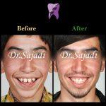 photo 2020 07 21 14 56 07 150x150 - درمان ارتودنسی ثابت با کشیدن دندان