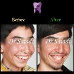 photo 2020 07 21 14 56 10 150x150 - درمان ارتودنسی ثابت با کشیدن دندان