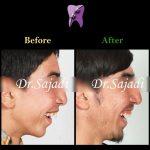 photo 2020 07 21 14 56 12 150x150 - درمان ارتودنسی ثابت با کشیدن دندان