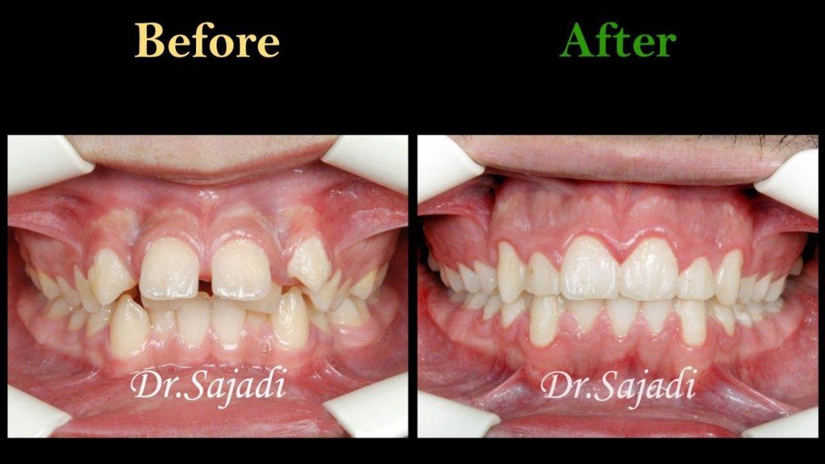 photo 2020 07 21 14 56 14 1200x675 - درمان ارتودنسی ثابت با کشیدن دندان