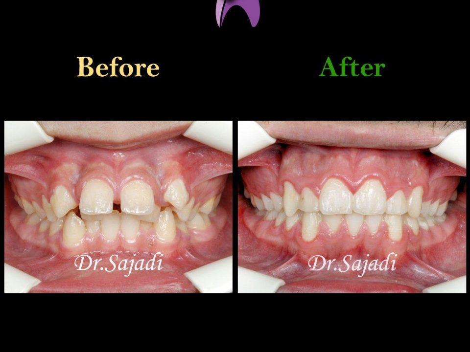 photo 2020 07 21 14 56 14 960x720 - درمان ارتودنسی ثابت با کشیدن دندان