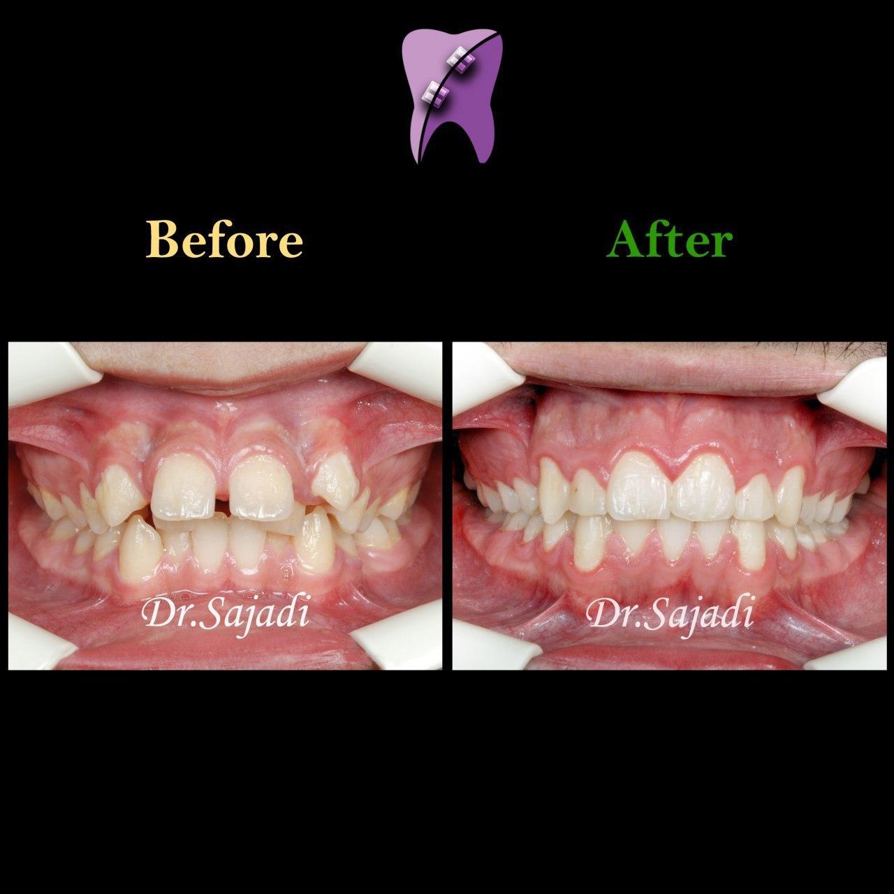 photo 2020 07 21 14 56 14 - درمان ارتودنسی ثابت با کشیدن دندان
