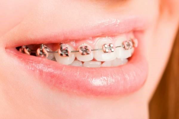 13 - نحوه ی صحیح تمیز کردن دندان های ارتودنسی شده