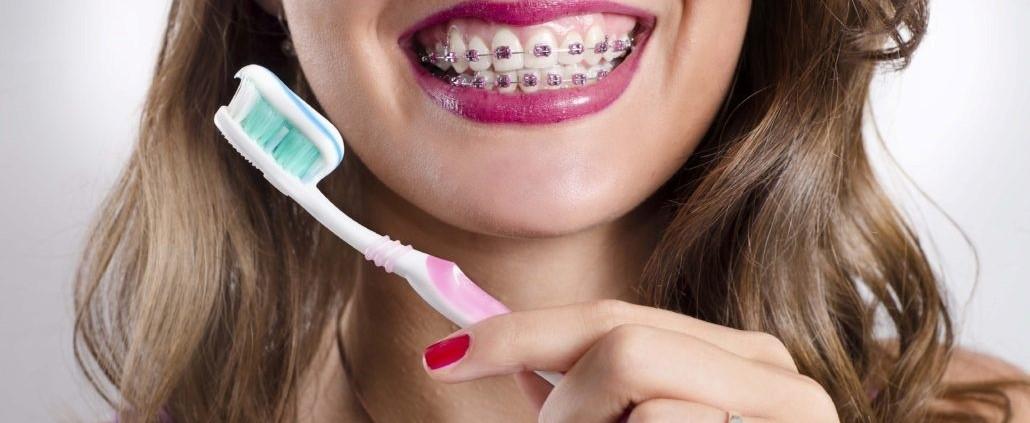 تمیز کردن دندان های ارتودنسی شده