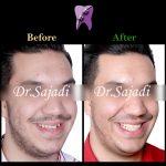 WhatsApp Image 2020 08 22 at 10.26.13 1 150x150 - درمان مشکل اسکلتی خفیف تا متوسط بدون جراحی فک