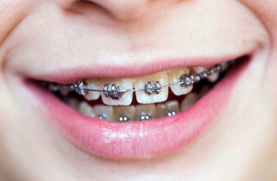 4 960x628 - آیا براکت به دهان و دندان آسیب می زند؟