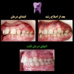 WhatsApp Image 2020 09 06 at 14.21.25 1 150x150 - درمان اصلاح رشد و سپس ارتودنسی ثابت در بیماری با مشکل اسکلتی