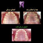 WhatsApp Image 2020 09 06 at 14.21.26 150x150 - درمان اصلاح رشد و سپس ارتودنسی ثابت در بیماری با مشکل اسکلتی